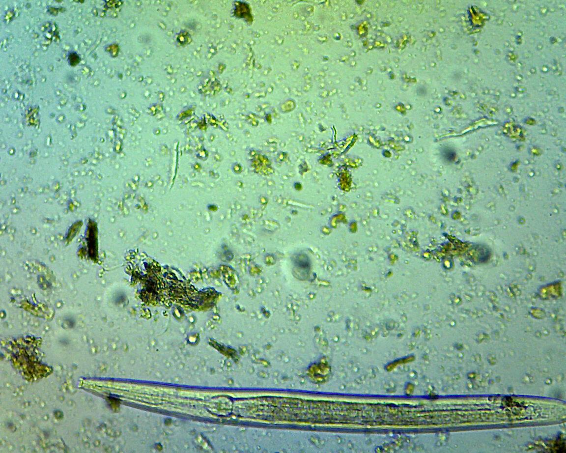 A microscope image of a nematode
